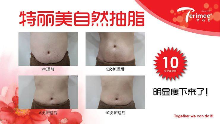 LIPO(II) SLIMMING PLASTY CARE-M